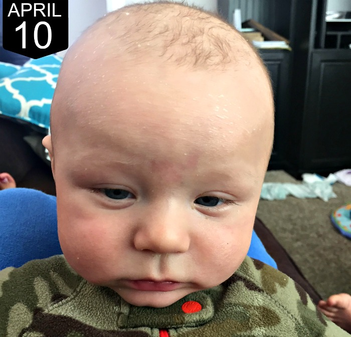 What we did for our infant's eczema