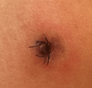 How to Prevent, Remove, and Treat a Tick Bite
